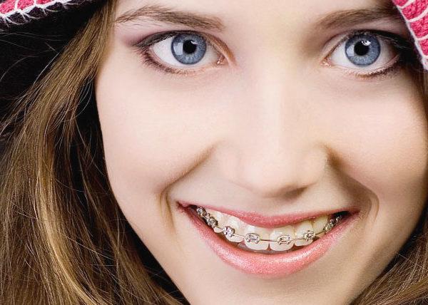 Брекеты VS Пластинка: что нужно для идеальной улыбки