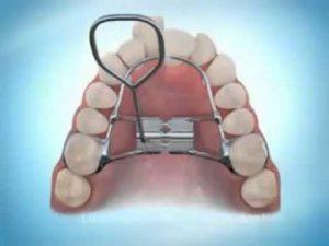 ортодонтическая пластинка для детей