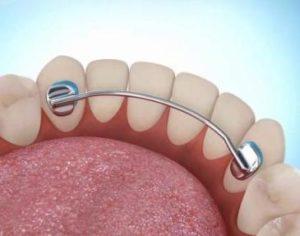 ретейнеры на зубы