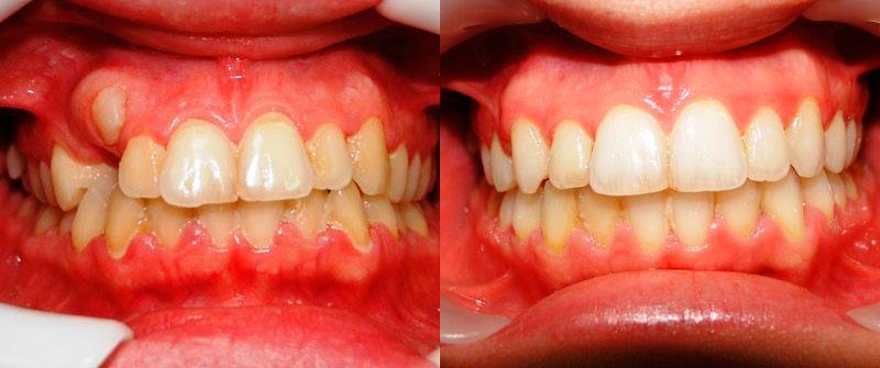 Выравнивание зубов брекетами (вид спереди)
