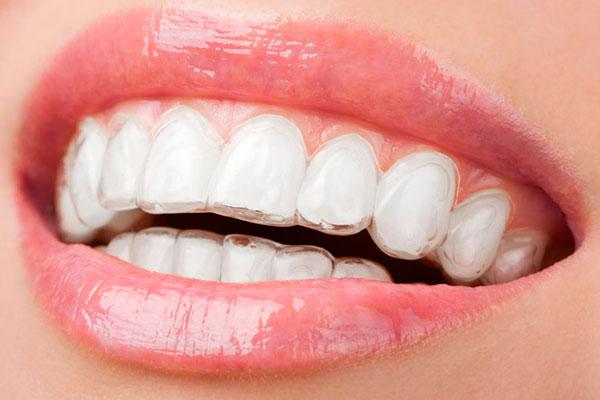 Прозрачные элайнеры почти не видно на зубах
