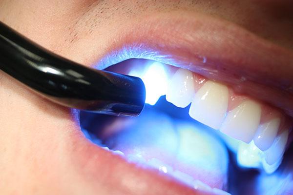 Реставрация зубов композитными материалами