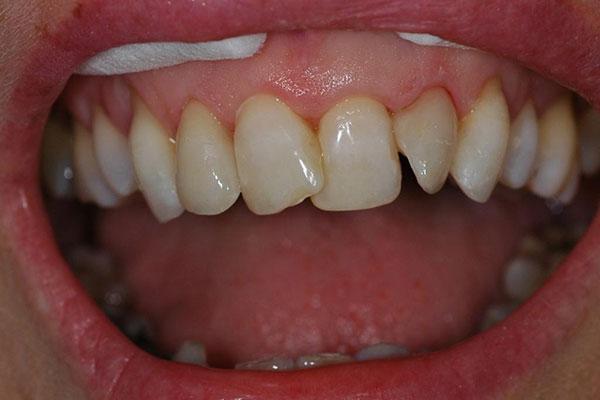 Кривые передние зубы