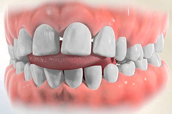 Неправильное положение языка во рту