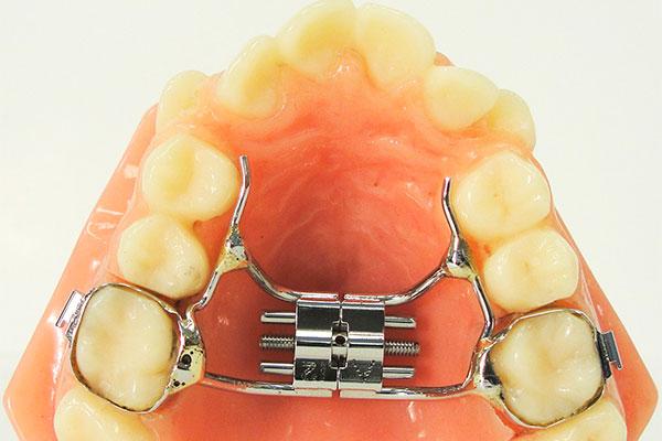 Несъёмная ортодонтическая пластинка