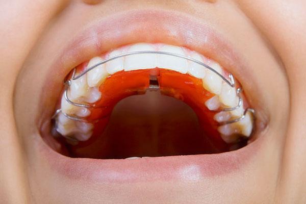 Съёмная ортодонтическая пластина