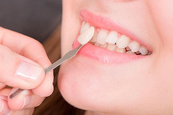 Виниры подбираются под цвет эмали зубов
